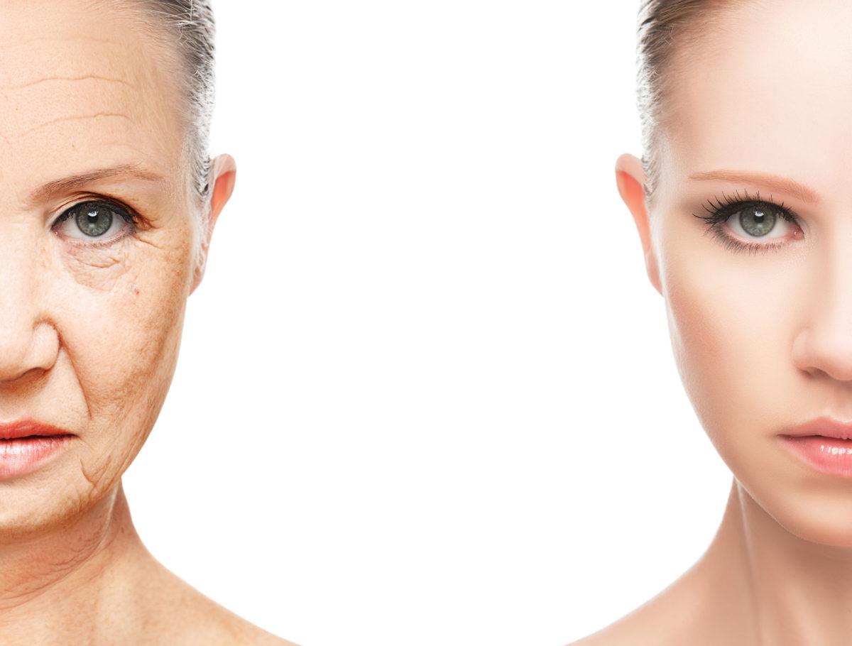karboksyterapia a starzenie