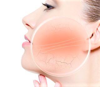leczenie rumienia twarzy