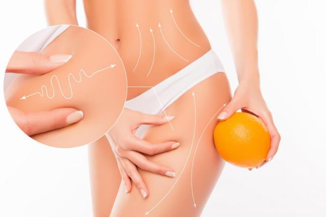 Uporczywy cellulit - skuteczna walka z pomarańczową skórką