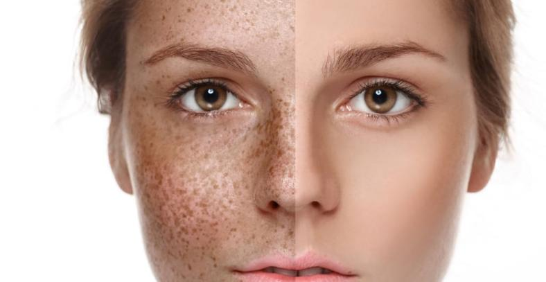 Po opalaniu może dojść do przebarwień skóry. Jak z nimi walczyć?