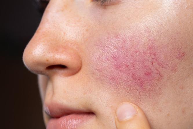 Jak leczyć trądzik różowaty? Kompleksowy poradnik